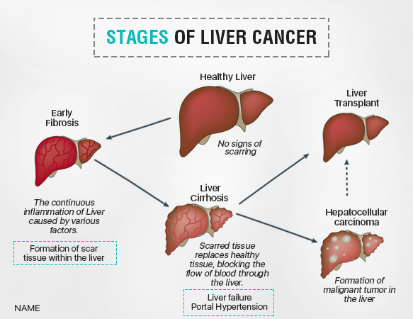 Liver cancer ccuart Image collections