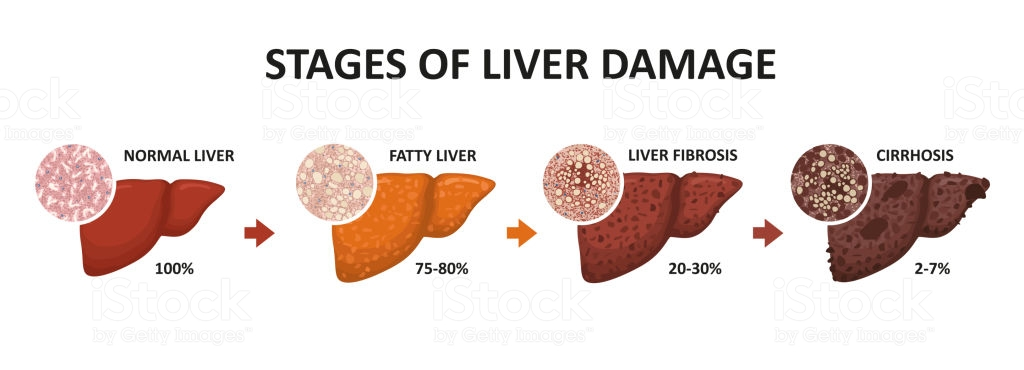 what viral infections affect the liver